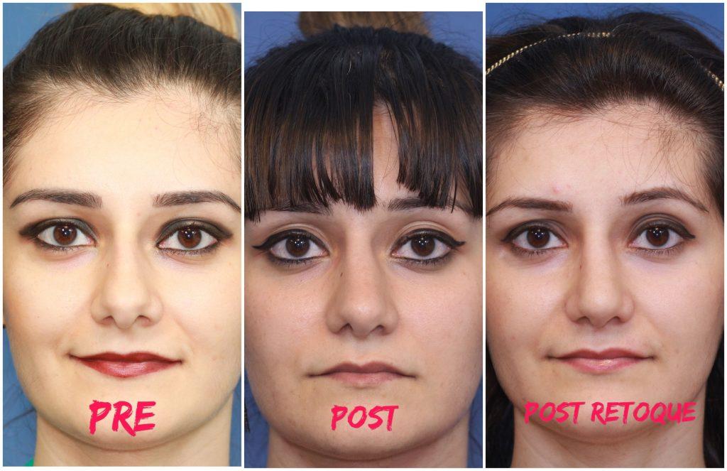 Fotos segunda rinoplastia
