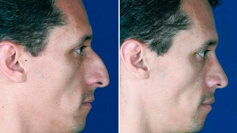 rinoplastia hombres nariz ancha