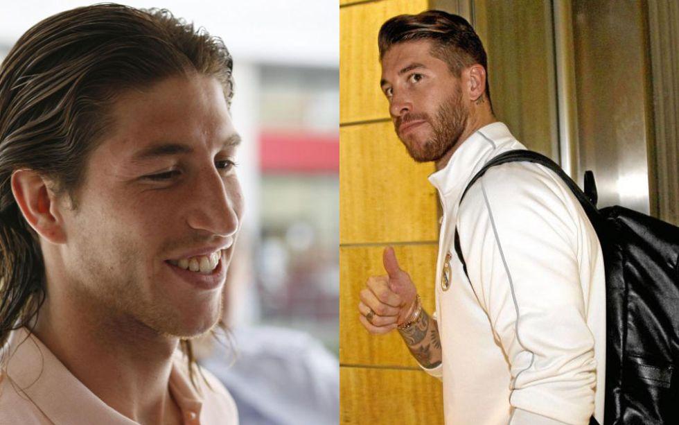 rinoplastia dos famosos antes e depois