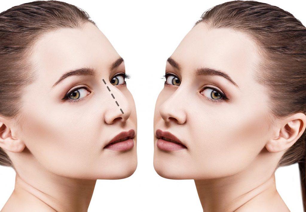 rinoplastia nariz ancha antes y despues
