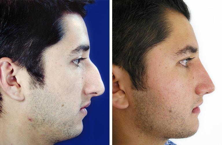rinoplastia hombre antes y despues