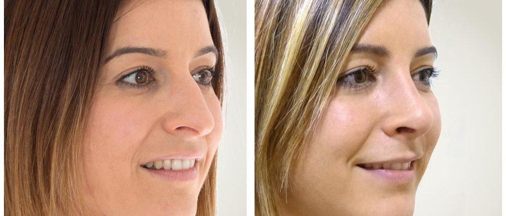 rinoplastia antes y despues mujeres