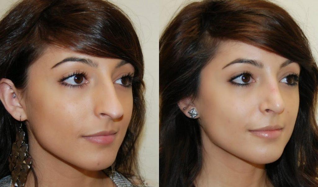 rinoplastia antes y despues nariz aguileña