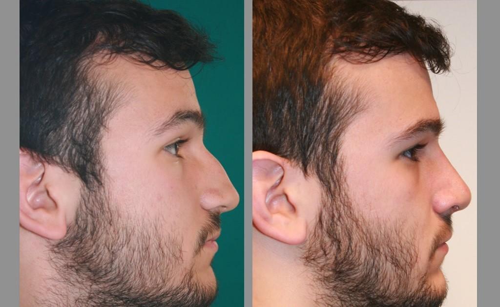 rinoplastia antes y despues nariz ancha