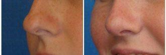 Rinoplastia punta nasal