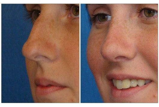 rinoplastia punta nasal precio