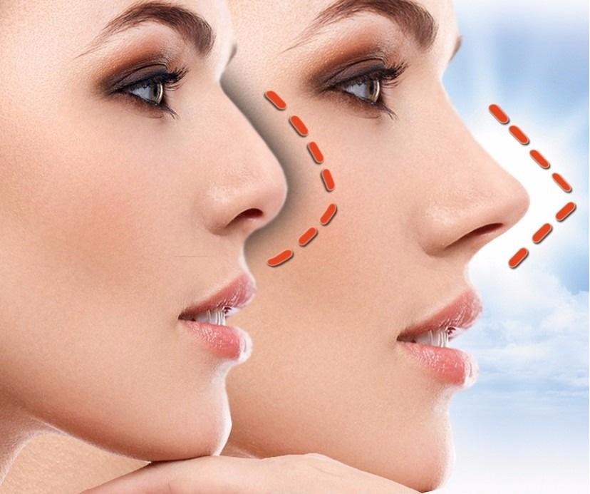 rinoplastia antes y despues mujeres nariz ancha